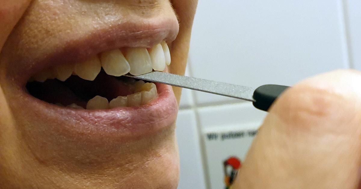 Zähne Feilen